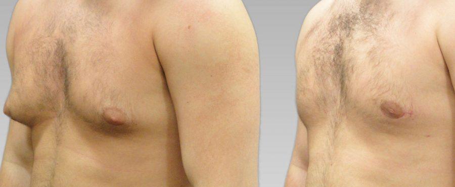 ما هي أسباب ترهل الثدي عند الرجال ؟ وكيفية علاجه