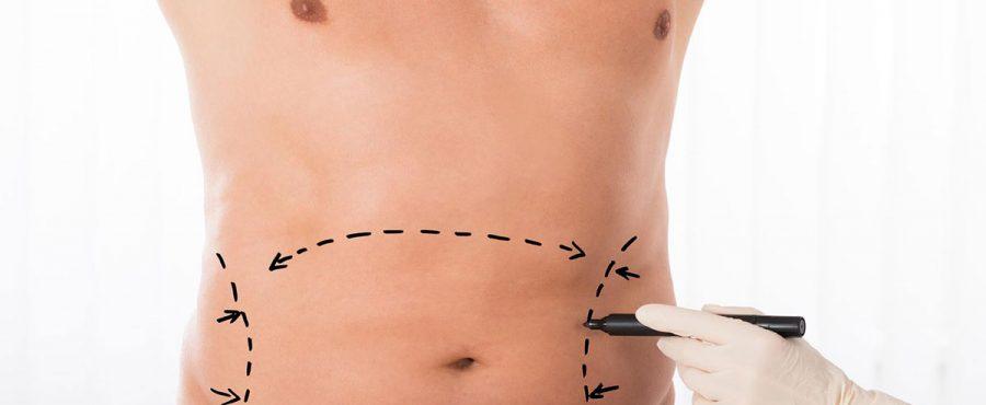 لماذا يعد شفط الدهون من أهم عمليات التجميل للرجال ؟