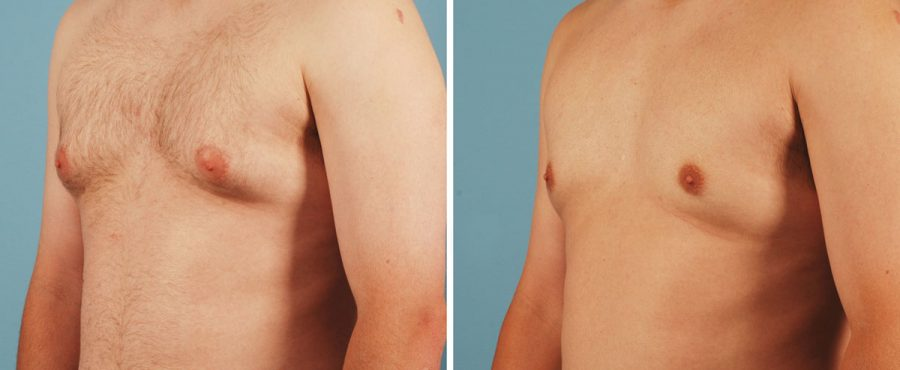 ما هي تكلفة علاج التثدي عند الرجال ؟ تعرف عليها الآن مع مركز أوركيد كلينك