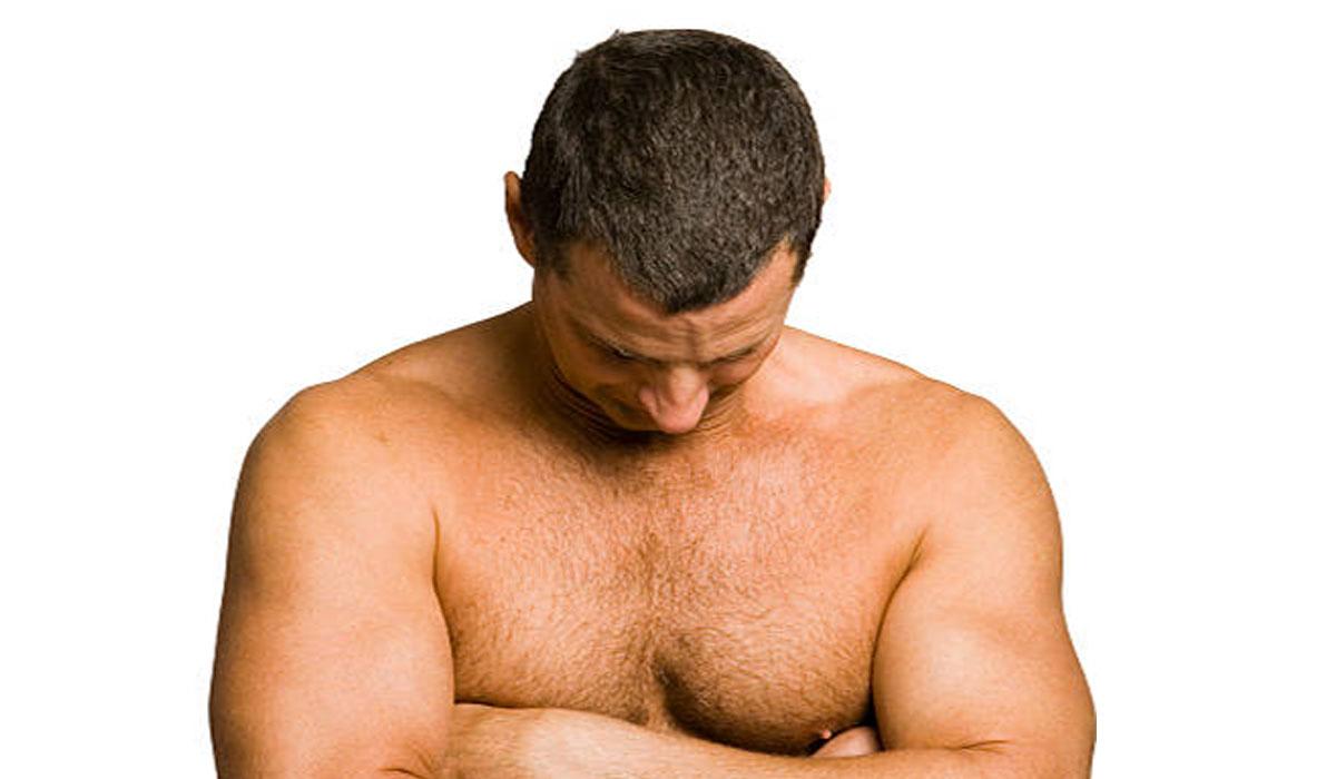 تورم الثدي عند الرجال