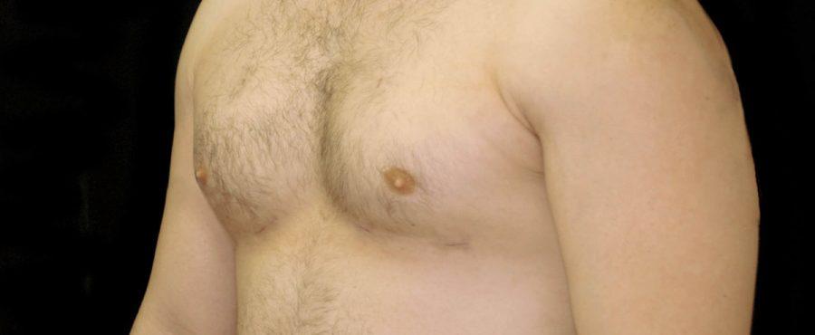 تعرف على طرق علاج تضخم الثدي عند الرجال المختلفة