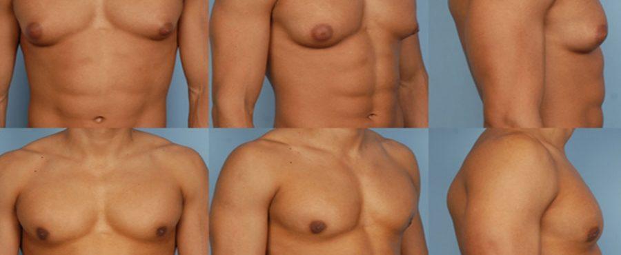 عملية التثدي عند الرجال : ما هي التقنيات المستخدمة في جراحة التثدي؟