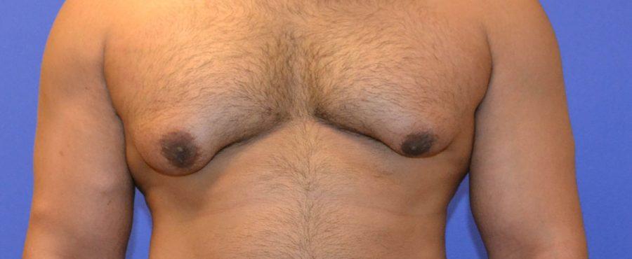 تضخم الثدي عند الرجال : تعرف على الأسباب وطرق العلاج