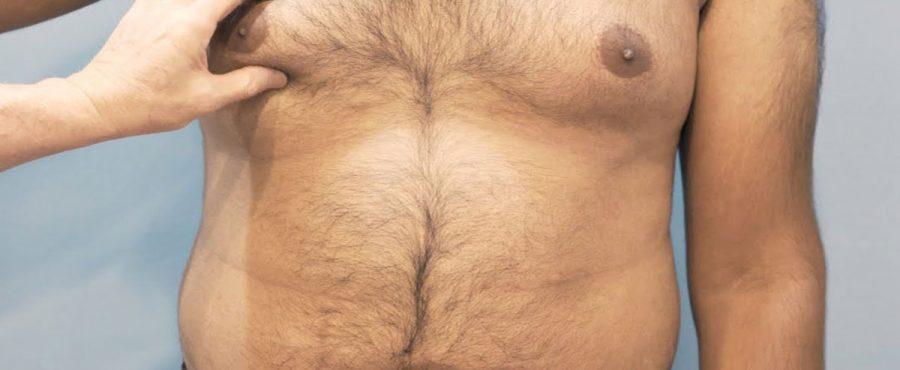 ما هي اشكال التثدي عند الرجال ؟ تعرف عليها مع مركز أوركيد كلينك