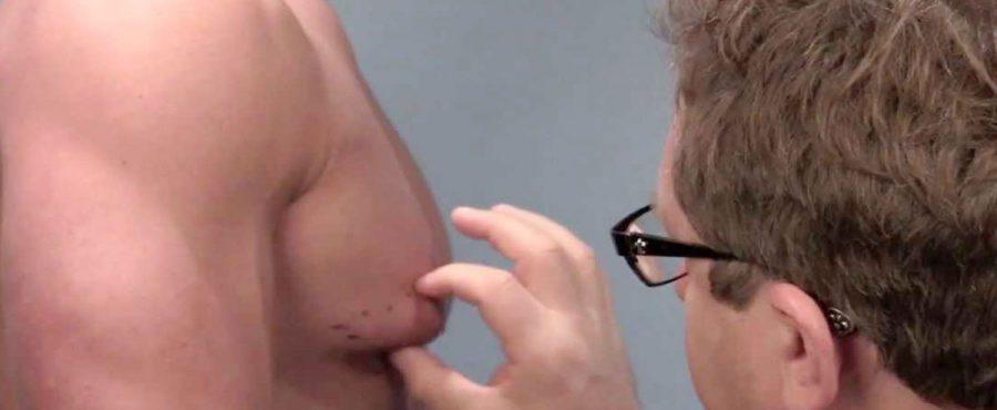 عيادات علاج التثدي عند الرجال … ما الذي تقدمه لك ؟