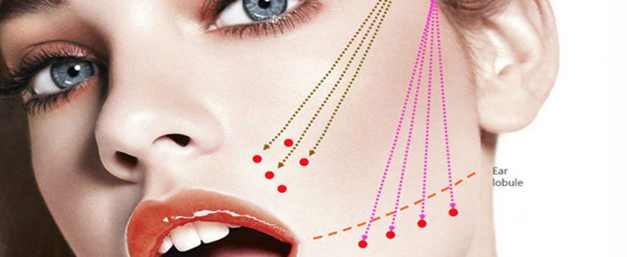 انواع خيوط شد الوجه : تعرف على أفضل أنواع الخيوط لاستعادة شباب البشرة بشكل طبيعي