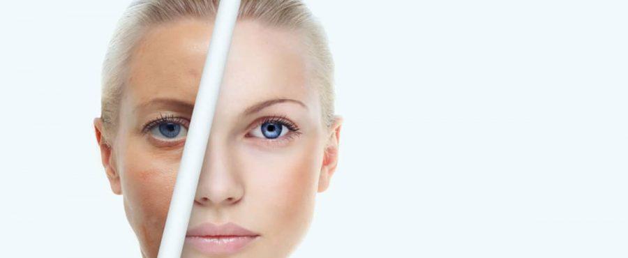 ما هي طرق شد ترهلات الوجه بدون جراحة لبشرة شابة ونضرة ؟