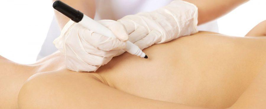 عملية زرع السيليكون : تعرفي على إجراءات تكبير الثدي بالسيليكون