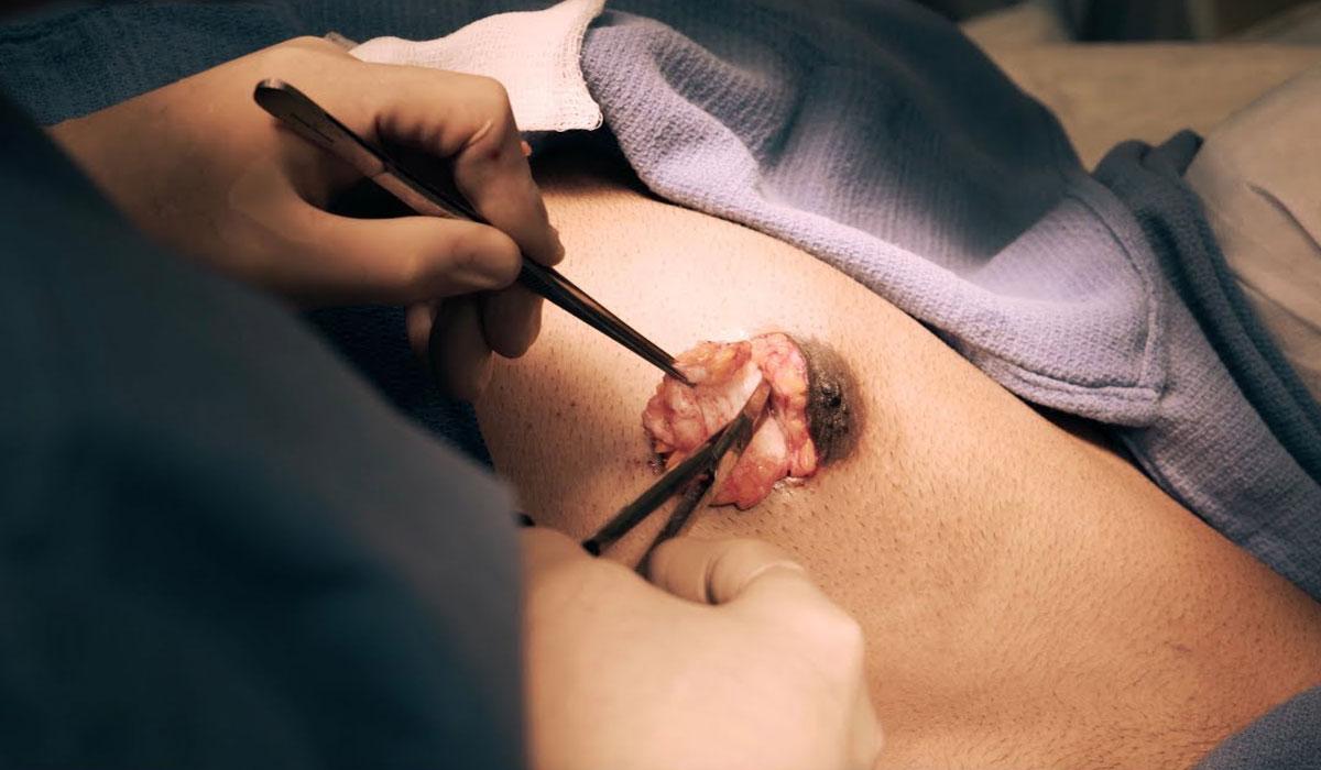علاج التثدي عند الرجال